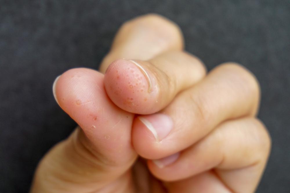 Eczema/Dermatitis