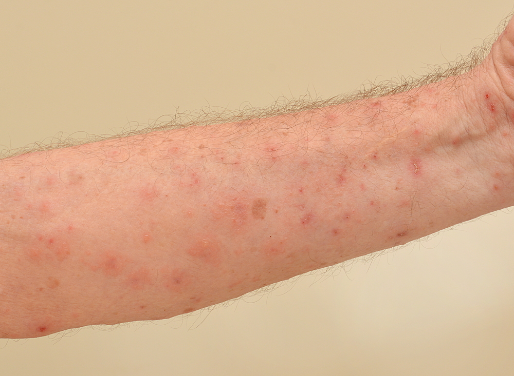 what causes scabies to itch